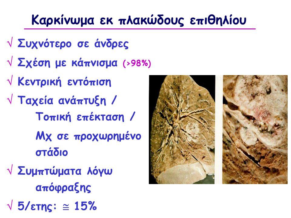 Καρκίνωμα εκ πλακώδους επιθηλίου  Συχνότερο σε άνδρες  Σχέση με κάπνισμα (>98%)  Κεντρική εντόπιση  Ταχεία ανάπτυξη / Τοπική επέκταση / Μχ σε προχωρημένο στάδιο  Συμπτώματα λόγω απόφραξης  5/ετης:  15%