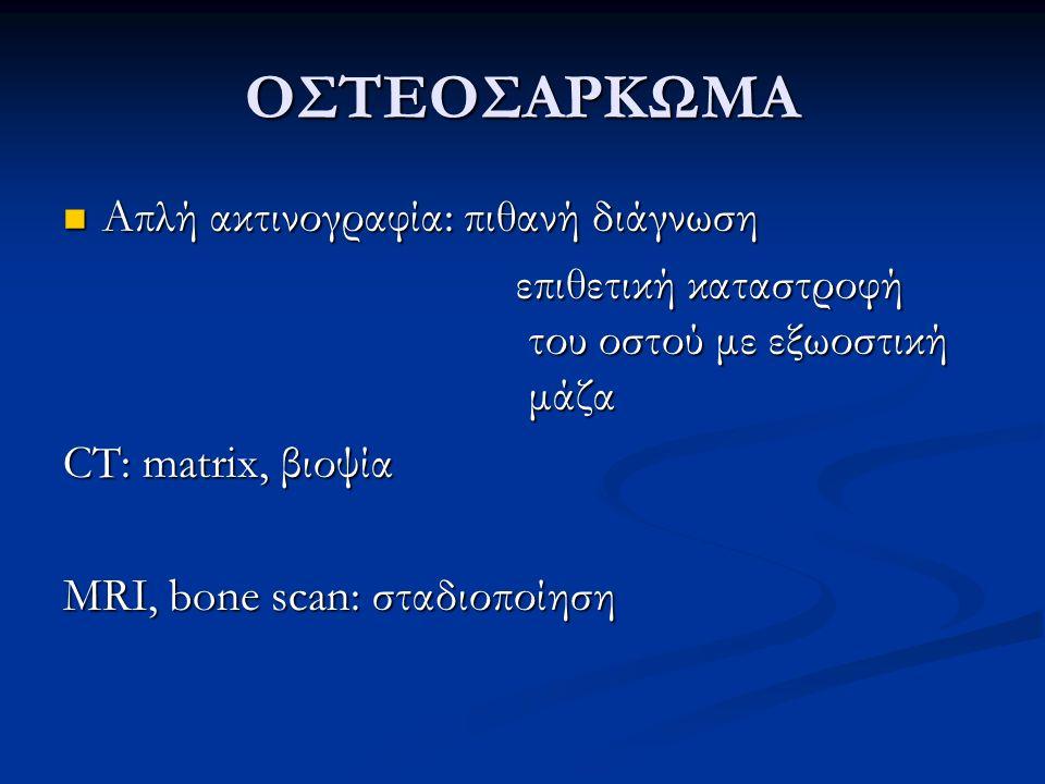 Απλή ακτινογραφία: πιθανή διάγνωση Απλή ακτινογραφία: πιθανή διάγνωση επιθετική καταστροφή του οστού με εξωοστική μάζα επιθετική καταστροφή του οστού