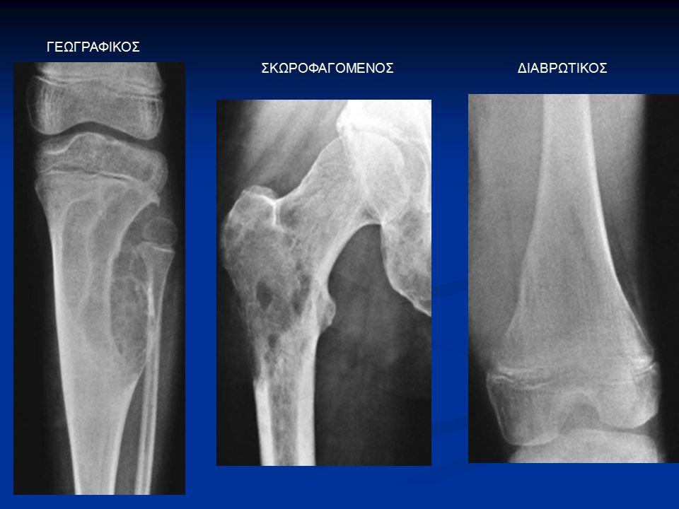 Απλή ακτινογραφία: πιθανή διάγνωση Απλή ακτινογραφία: πιθανή διάγνωση επιθετική καταστροφή του οστού με εξωοστική μάζα επιθετική καταστροφή του οστού με εξωοστική μάζα CT: matrix, βιοψία MRΙ, bone scan: σταδιοποίηση ΟΣΤΕΟΣΑΡΚΩΜΑ