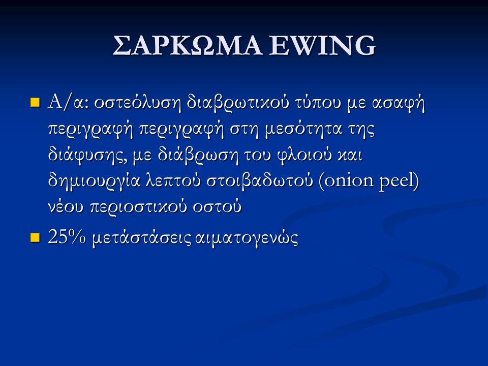 ΣAΡΚΩΜΑ EWING Α/α: οστεόλυση διαβρωτικού τύπου με ασαφή περιγραφή περιγραφή στη μεσότητα της διάφυσης, με διάβρωση του φλοιού και δημιουργία λεπτού στ