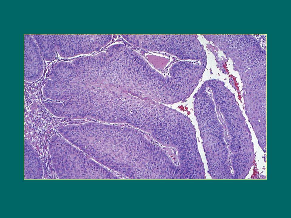 Η Μοριακή Βιολογία στη διάγνωση και στη στοχευμένη θεραπεία του καρκίνου του πνεύμονα με επικέντρωση στα μη μικροκυτταρικά καρκινώματα (NSCLC) Παράγοντες που μπορούν να αναστείλουν τους υποδοχείς του επιδερμιδικού αυξητικού παράγοντα (EGFR) EGFR Tyrosine Kinase Inhibitors (TKIs) (Gefitinib, Erlotinib)