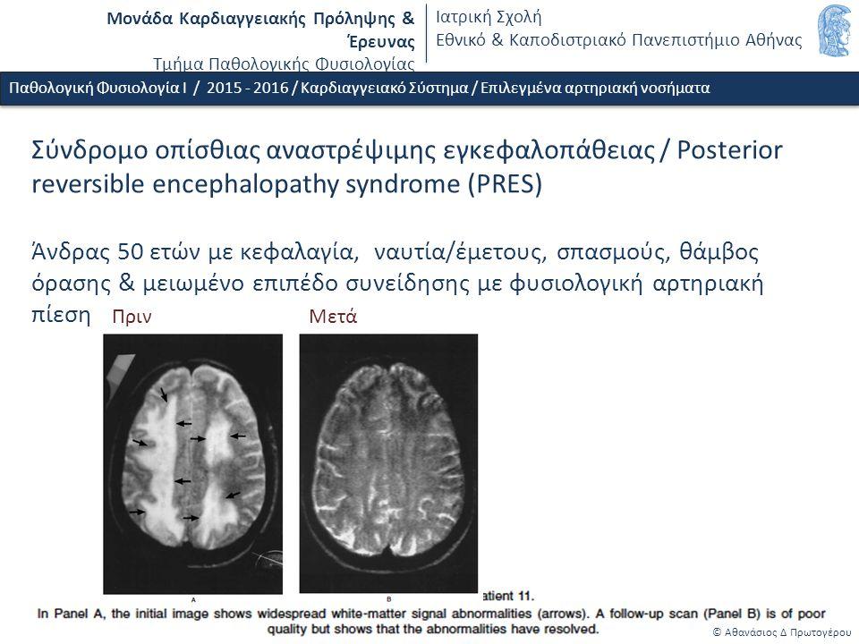 Σύνδρομο οπίσθιας αναστρέψιμης εγκεφαλοπάθειας / Posterior reversible encephalopathy syndrome (PRES) Άνδρας 50 ετών με κεφαλαγία, ναυτία/έμετους, σπασμούς, θάμβος όρασης & μειωμένο επιπέδο συνείδησης με φυσιολογική αρτηριακή πίεση Μονάδα Καρδιαγγειακής Πρόληψης & Έρευνας Τμήμα Παθολογικής Φυσιολογίας Ιατρική Σχολή Εθνικό & Καποδιστριακό Πανεπιστήμιο Αθήνας © Αθανάσιος Δ Πρωτογέρου Παθολογική Φυσιολογία Ι / 2015 - 2016 / Καρδιαγγειακό Σύστημα / Επιλεγμένα αρτηριακή νοσήματα Πριν Μετά