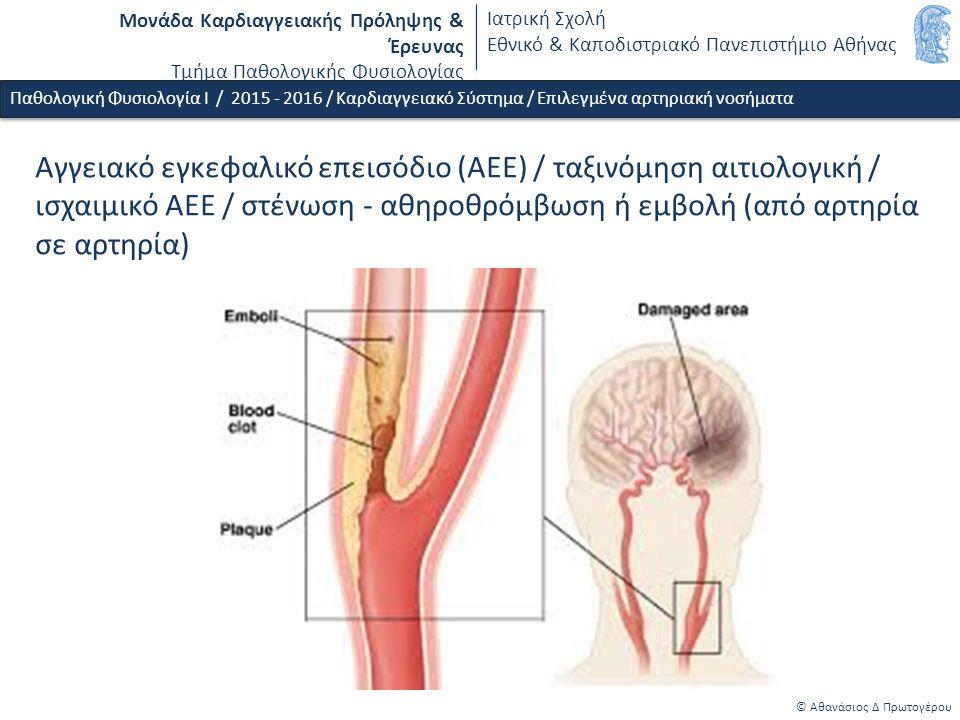 Μονάδα Καρδιαγγειακής Πρόληψης & Έρευνας Τμήμα Παθολογικής Φυσιολογίας Ιατρική Σχολή Εθνικό & Καποδιστριακό Πανεπιστήμιο Αθήνας © Αθανάσιος Δ Πρωτογέρου Παθολογική Φυσιολογία Ι / 2015 - 2016 / Καρδιαγγειακό Σύστημα / Επιλεγμένα αρτηριακή νοσήματα Αγγειακό εγκεφαλικό επεισόδιο (ΑΕΕ) / ταξινόμηση αιτιολογική / ισχαιμικό ΑΕΕ / στένωση - αθηροθρόμβωση ή εμβολή (από αρτηρία σε αρτηρία)