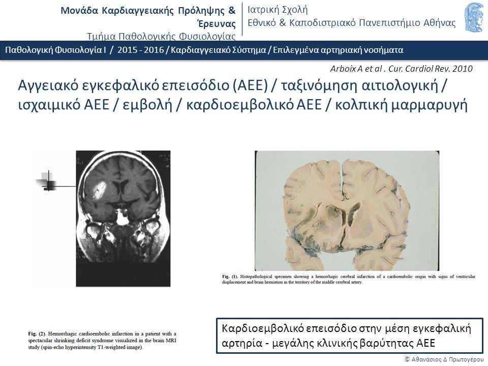 Μονάδα Καρδιαγγειακής Πρόληψης & Έρευνας Τμήμα Παθολογικής Φυσιολογίας Ιατρική Σχολή Εθνικό & Καποδιστριακό Πανεπιστήμιο Αθήνας © Αθανάσιος Δ Πρωτογέρου Παθολογική Φυσιολογία Ι / 2015 - 2016 / Καρδιαγγειακό Σύστημα / Επιλεγμένα αρτηριακή νοσήματα Αγγειακό εγκεφαλικό επεισόδιο (ΑΕΕ) / ταξινόμηση αιτιολογική / ισχαιμικό ΑΕΕ / εμβολή / καρδιοεμβολικό ΑΕΕ / κολπική μαρμαρυγή Καρδιοεμβολικό επεισόδιο στην μέση εγκεφαλική αρτηρία - μεγάλης κλινικής βαρύτητας ΑΕΕ Arboix A et al.