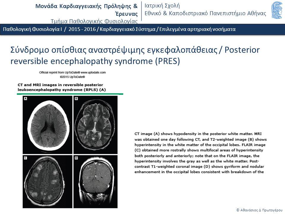 Μονάδα Καρδιαγγειακής Πρόληψης & Έρευνας Τμήμα Παθολογικής Φυσιολογίας Ιατρική Σχολή Εθνικό & Καποδιστριακό Πανεπιστήμιο Αθήνας © Αθανάσιος Δ Πρωτογέρου Παθολογική Φυσιολογία Ι / 2015 - 2016 / Καρδιαγγειακό Σύστημα / Επιλεγμένα αρτηριακή νοσήματα Αγγειακό εγκεφαλικό επεισόδιο (ΑΕΕ) / ταξινόμηση αιτιολογική / ισχαιμικό ΑΕΕ / εμβολή / καρδιοεμβολικό ΑΕΕ / κολπική μαρμαρυγή Καρδιοεμβολικό επεισόδιο στην μέση εγκεφαλική αρτηρία ΤΟ ΦΑΙΝΟΜΕΝΟ ΤΗΣ ΑΙΜΟΡΡΑΓΙΚΗΣ ΜΕΤΑΤΡΟΠΗΣ είναι πολύ συχνό σε μεγάλα καρδιοεμβολικά ΑΕΕ Arboix A et al.