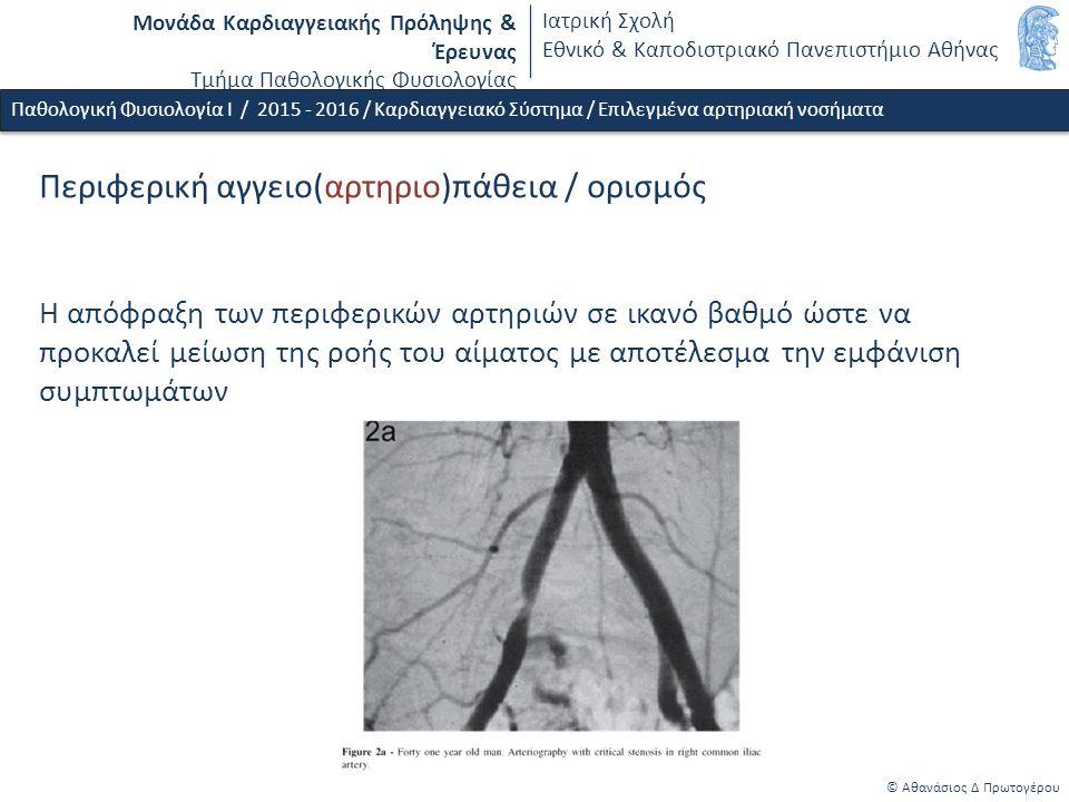 Μονάδα Καρδιαγγειακής Πρόληψης & Έρευνας Τμήμα Παθολογικής Φυσιολογίας Ιατρική Σχολή Εθνικό & Καποδιστριακό Πανεπιστήμιο Αθήνας © Αθανάσιος Δ Πρωτογέρου Παθολογική Φυσιολογία Ι / 2015 - 2016 / Καρδιαγγειακό Σύστημα / Επιλεγμένα αρτηριακή νοσήματα Περιφερική αγγειο(αρτηριο)πάθεια / ορισμός Η απόφραξη των περιφερικών αρτηριών σε ικανό βαθμό ώστε να προκαλεί μείωση της ροής του αίματος με αποτέλεσμα την εμφάνιση συμπτωμάτων