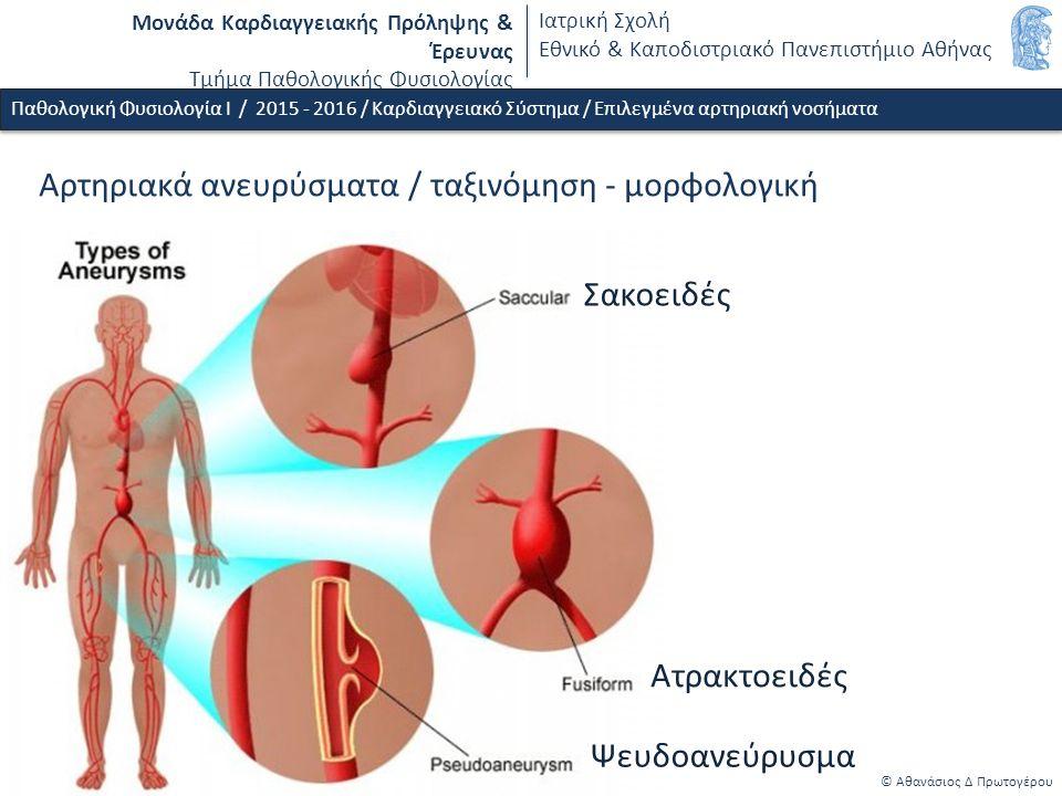 Μονάδα Καρδιαγγειακής Πρόληψης & Έρευνας Τμήμα Παθολογικής Φυσιολογίας Ιατρική Σχολή Εθνικό & Καποδιστριακό Πανεπιστήμιο Αθήνας © Αθανάσιος Δ Πρωτογέρου Παθολογική Φυσιολογία Ι / 2015 - 2016 / Καρδιαγγειακό Σύστημα / Επιλεγμένα αρτηριακή νοσήματα Αρτηριακά ανευρύσματα / ταξινόμηση - μορφολογική Σακοειδές Ατρακτοειδές Ψευδοανεύρυσμα