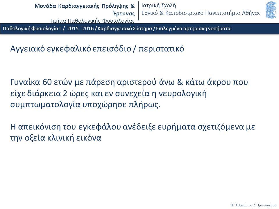 Μονάδα Καρδιαγγειακής Πρόληψης & Έρευνας Τμήμα Παθολογικής Φυσιολογίας Ιατρική Σχολή Εθνικό & Καποδιστριακό Πανεπιστήμιο Αθήνας © Αθανάσιος Δ Πρωτογέρου Παθολογική Φυσιολογία Ι / 2015 - 2016 / Καρδιαγγειακό Σύστημα / Επιλεγμένα αρτηριακή νοσήματα Αγγειακό εγκεφαλικό επεισόδιο (ΑΕΕ) / παθοφυσιολογική ταξινόμηση & συχνότητα Ισχαιμικό ΑΕΕ - 80% o Αθηρωμάτωση - atheromatosis (15-35 %) Στένωση - υποάρδευση (low flow) Εμβολή από αρτηρία σε αρτηρία o Καρδιοεμβολικά - cardioembolic (18-33 %) o Κενοτοπιώδη - lacunar (17-25 %) o Κρυπτογενή - undetermined etiology (12-37 %) o Διάφορα αίτια - other determined etiology (5 %) Αιμορραγικό ΑΕΕ - 20% o Υποαραχνοειδής α.