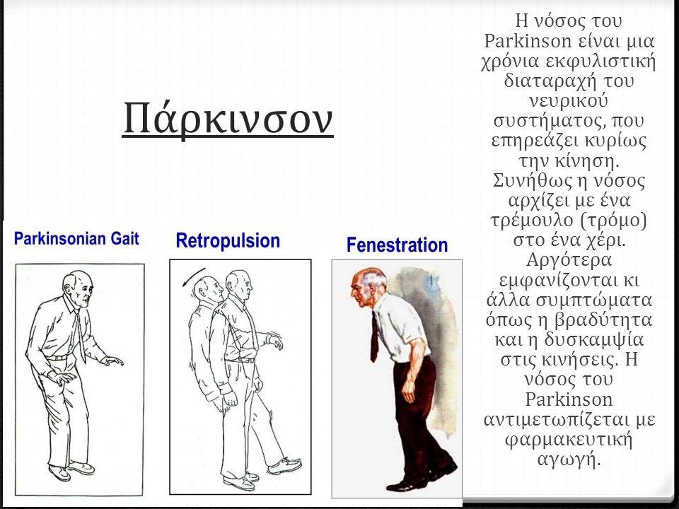 Πάρκινσον Η νόσος του Parkinson είναι μια χρόνια εκφυλιστική διαταραχή του νευρικού συστήματος, που επηρεάζει κυρίως την κίνηση.
