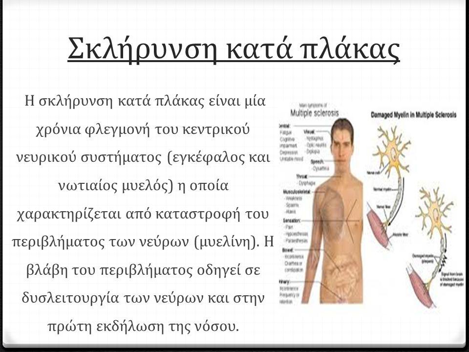 Σκλήρυνση κατά πλάκας Η σκλήρυνση κατά πλάκας είναι μία χρόνια φλεγμονή του κεντρικού νευρικού συστήματος (εγκέφαλος και νωτιαίος μυελός) η οποία χαρακτηρίζεται από καταστροφή του περιβλήματος των νεύρων (μυελίνη).