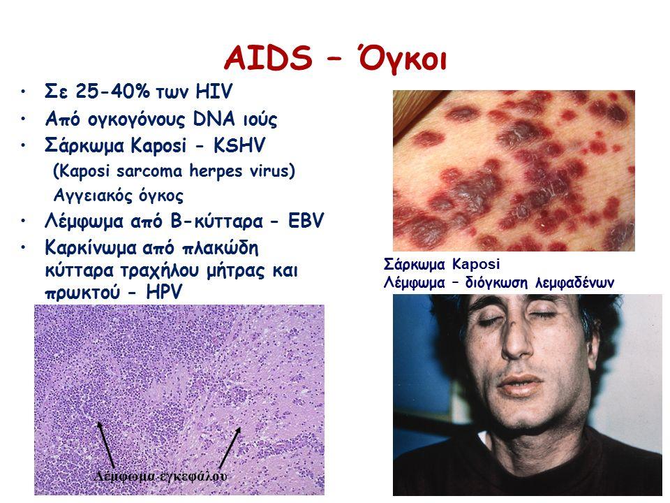 Σε 25-40% των HIV Από ογκογόνους DNA ιούς Σάρκωμα Kaposi - KSHV (Καposi sarcoma herpes virus) Αγγειακός όγκος Λέμφωμα από Β-κύτταρα - EBV Καρκίνωμα από πλακώδη κύτταρα τραχήλου μήτρας και πρωκτού - HPV ΑΙDS – Όγκοι Σάρκωμα Κ aposi Λέμφωμα – διόγκωση λεμφαδένων Λέμφωμα εγκεφάλου