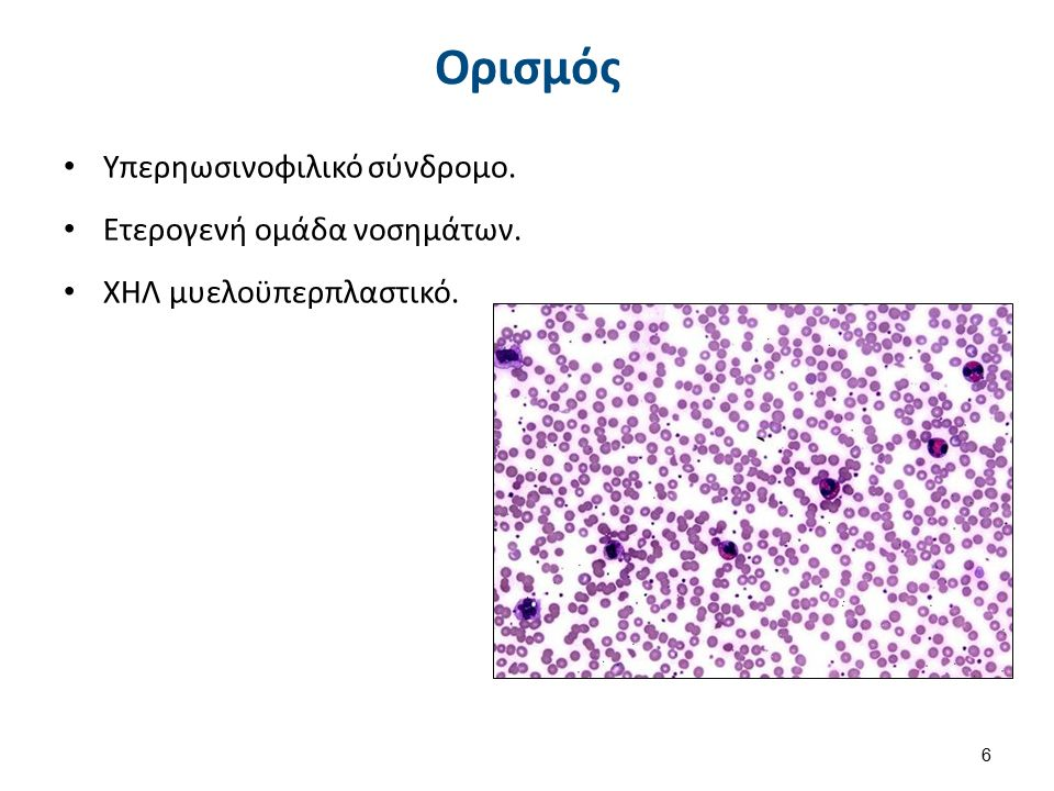 Ορισμός Υπερηωσινοφιλικό σύνδρομο. Ετερογενή ομάδα νοσημάτων. ΧΗΛ μυελοϋπερπλαστικό. 6
