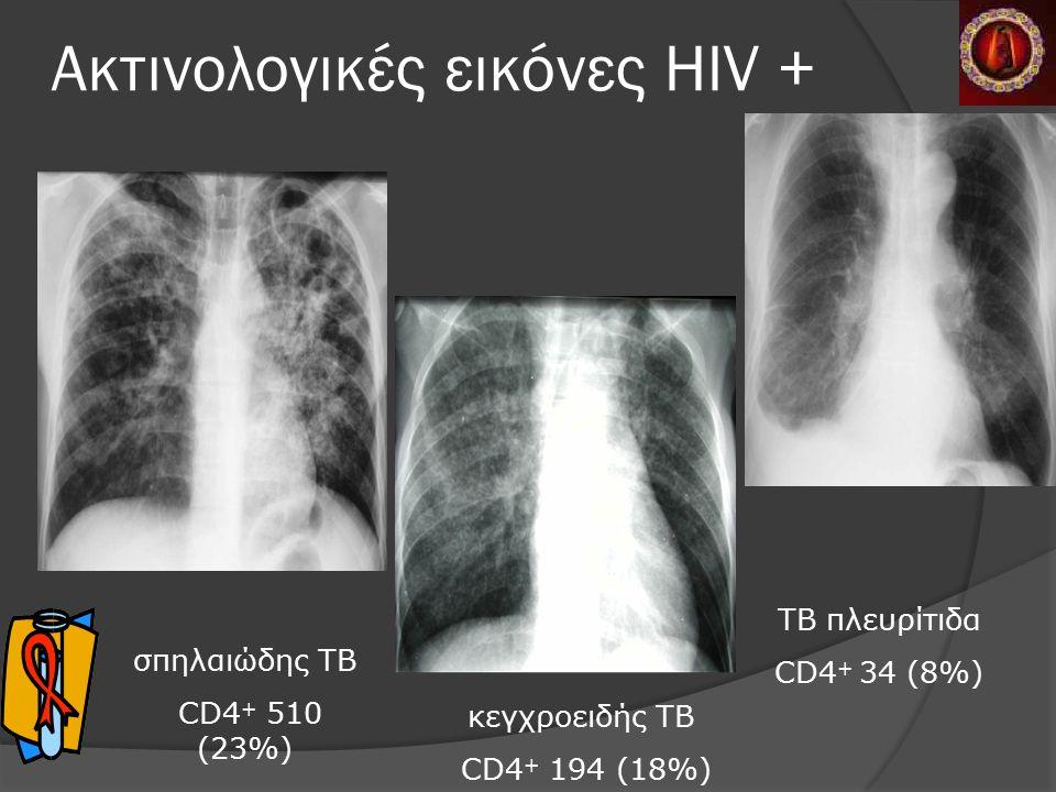 Ακτινολογικές εικόνες HIV + σπηλαιώδης TB CD4 + 510 (23%) κεγχροειδής TB CD4 + 194 (18%) TB πλευρίτιδα CD4 + 34 (8%) Lange et al, Pneumologie 2004