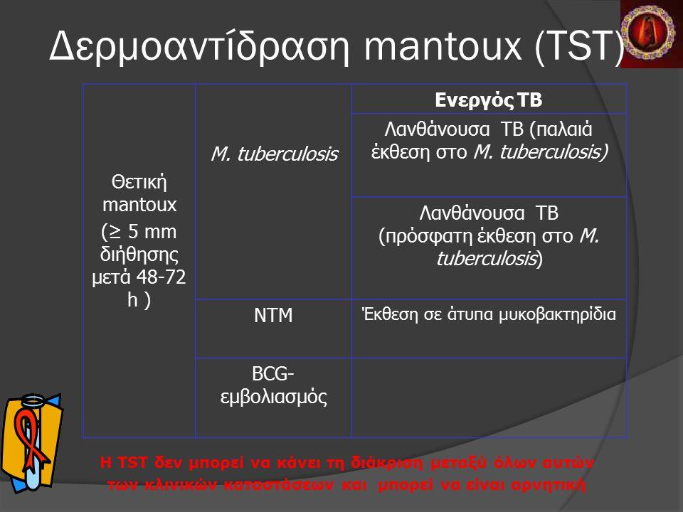 Θετική mantoux (≥ 5 mm διήθησης μετά 48-72 h ) M.