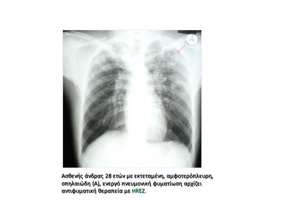 Ασθενής άνδρας 28 ετών με εκτεταμένη, αμφοτερόπλευρη, σπηλαιώδη (Α), ενεργό πνευμονική φυματίωση αρχίζει αντιφυματική θεραπεία με HREZ.