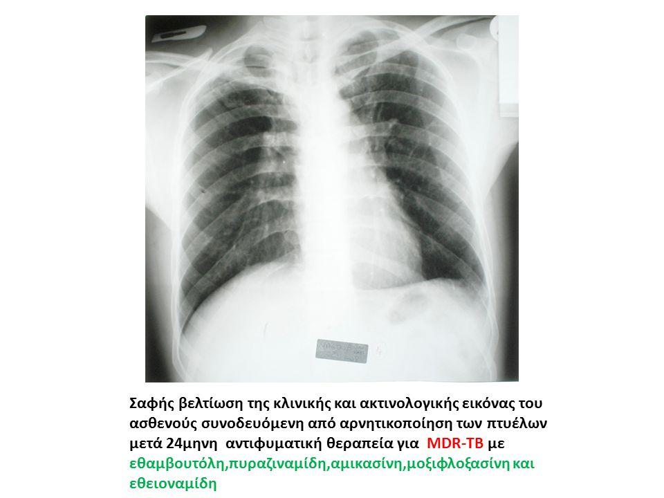 Σαφής βελτίωση της κλινικής και ακτινολογικής εικόνας του ασθενούς συνοδευόμενη από αρνητικοποίηση των πτυέλων μετά 24μηνη αντιφυματική θεραπεία για MDR-TB με εθαμβουτόλη,πυραζιναμίδη,αμικασίνη,μοξιφλοξασίνη και εθειοναμίδη