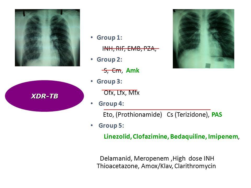 Group 1: INH, RIF, ΕΜΒ, PZA, Group 2: S, Cm, Amk Group 3: Ofx, Lfx, Mfx Group 4: Eto, (Prothionamide) Cs (Terizidone), PAS Group 5: Linezolid, Clofazimine, Bedaquiline, Imipenem, Delamanid, Meropenem,High dose INH Thioacetazone, Amox/Klav, Clarithromycin XDR-TB