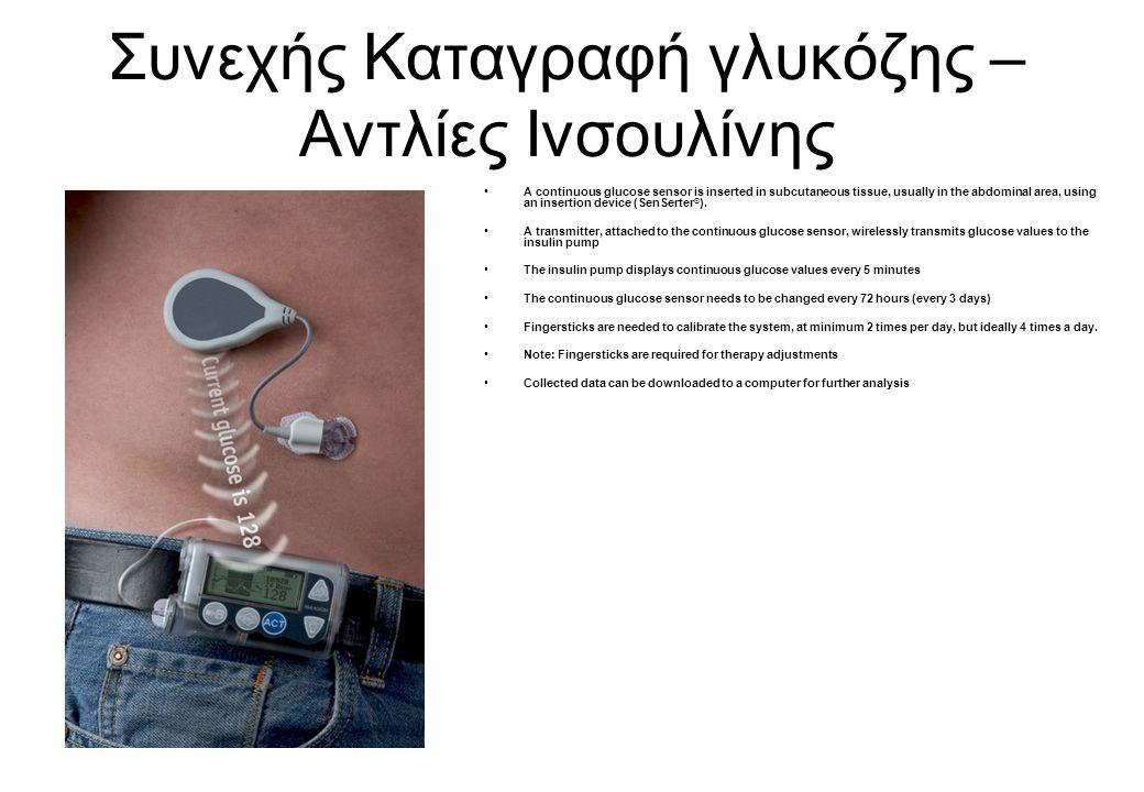 Συνεχής Καταγραφή γλυκόζης – Αντλίες Ινσουλίνης A continuous glucose sensor is inserted in subcutaneous tissue, usually in the abdominal area, using a