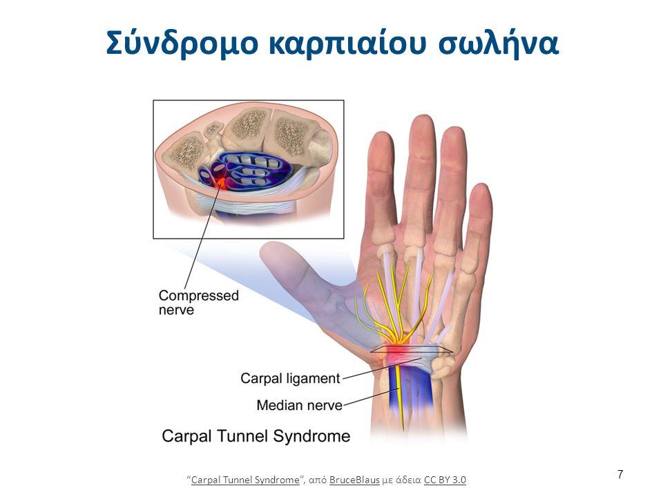"""Σύνδρομο καρπιαίου σωλήνα 7 """"Carpal Tunnel Syndrome"""", από BruceBlaus με άδεια CC BY 3.0Carpal Tunnel SyndromeBruceBlausCC BY 3.0"""