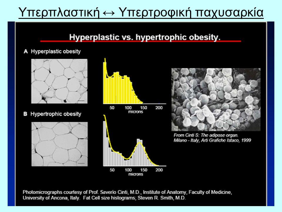 39 Υπερπλαστική ↔ Υπερτροφική παχυσαρκία