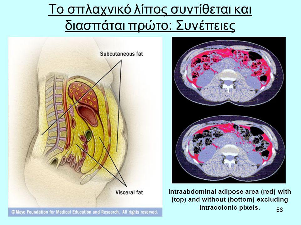 58 Το σπλαχνικό λίπος συντίθεται και διασπάται πρώτο: Συνέπειες Intraabdominal adipose area (red) with (top) and without (bottom) excluding intracolon