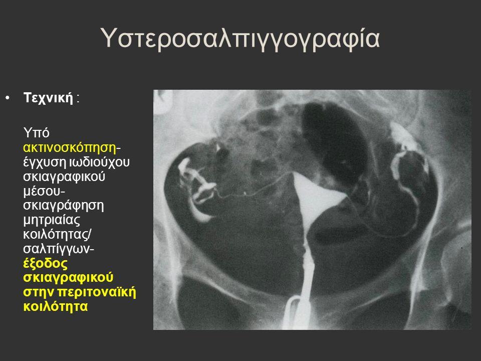 Υστεροσαλπιγγογραφία Τεχνική : Υπό ακτινοσκόπηση- έγχυση ιωδιούχου σκιαγραφικού μέσου- σκιαγράφηση μητριαίας κοιλότητας/ σαλπίγγων- έξοδος σκιαγραφικού στην περιτοναϊκή κοιλότητα