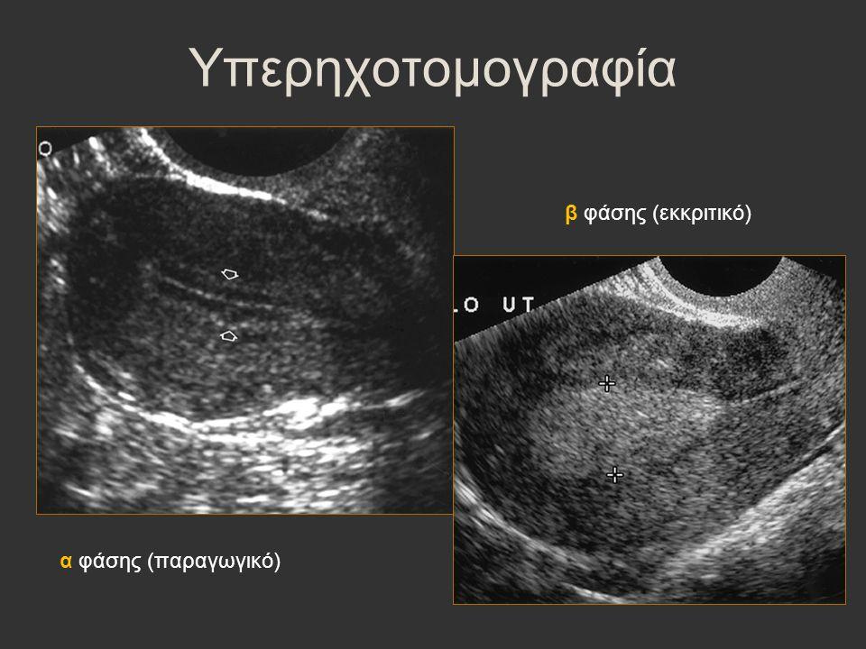 Υπερηχοτομογραφία α φάσης (παραγωγικό) β φάσης (εκκριτικό)