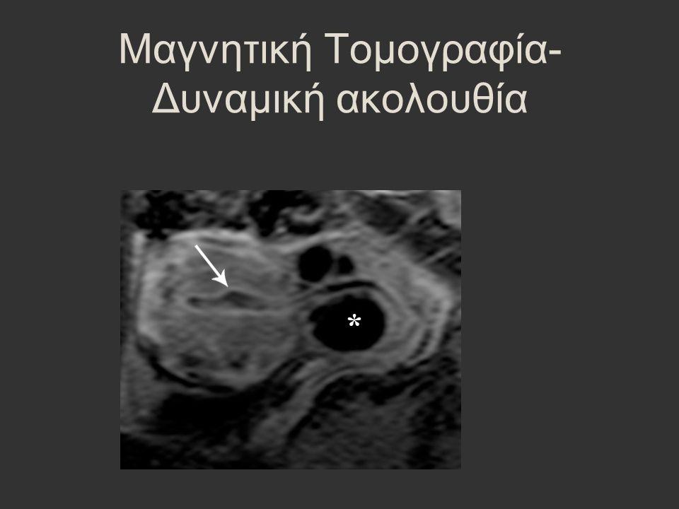 Μαγνητική Τομογραφία- Δυναμική ακολουθία