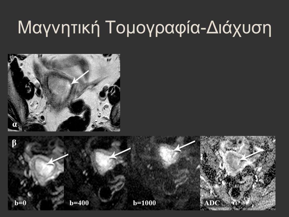 Μαγνητική Τομογραφία-Διάχυση