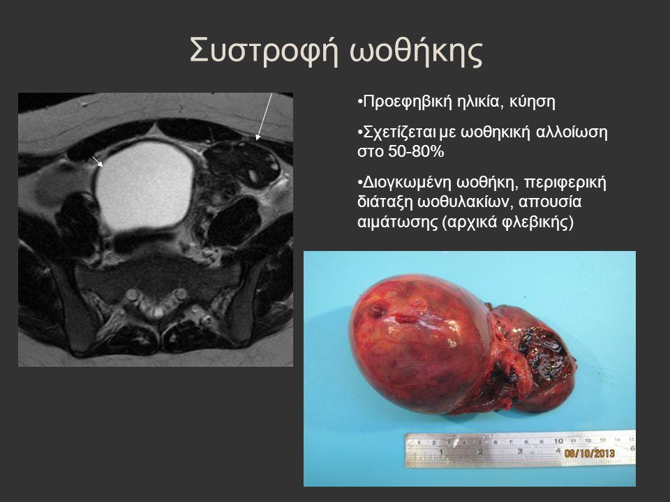 Συστροφή ωοθήκης Προεφηβική ηλικία, κύηση Σχετίζεται με ωοθηκική αλλοίωση στο 50-80% Διογκωμένη ωοθήκη, περιφερική διάταξη ωοθυλακίων, απουσία αιμάτωσης (αρχικά φλεβικής)