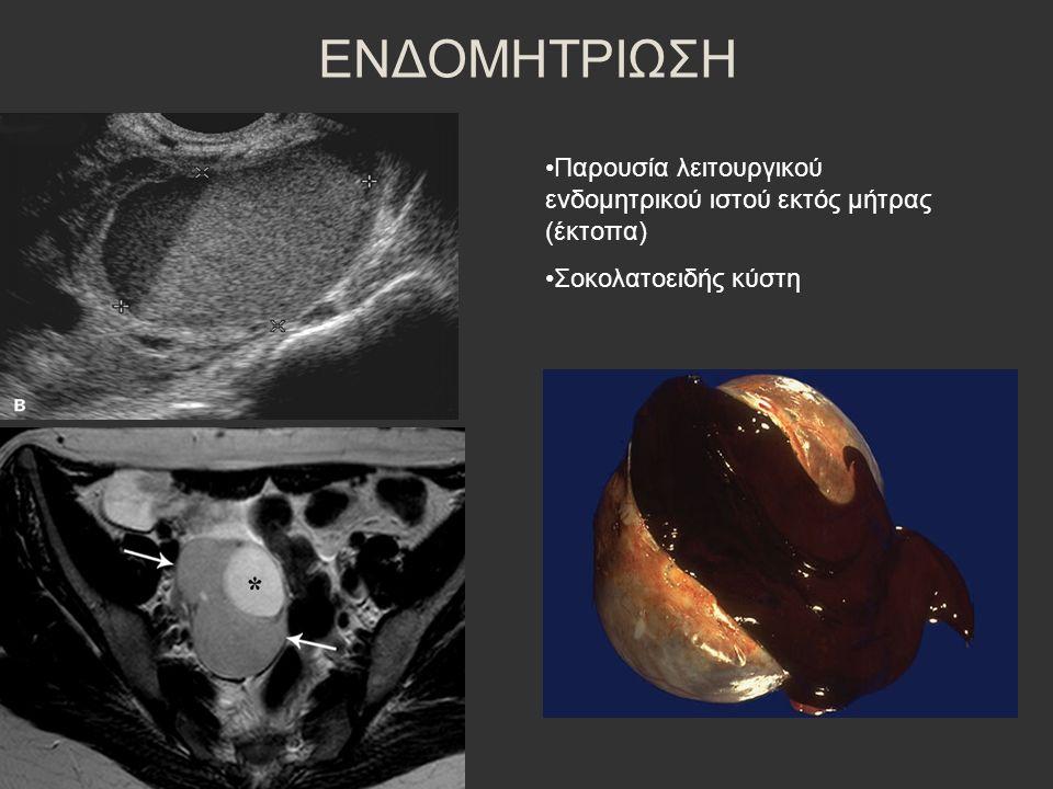 ΕΝΔΟΜΗΤΡΙΩΣΗ Παρουσία λειτουργικού ενδομητρικού ιστού εκτός μήτρας (έκτοπα) Σοκολατοειδής κύστη