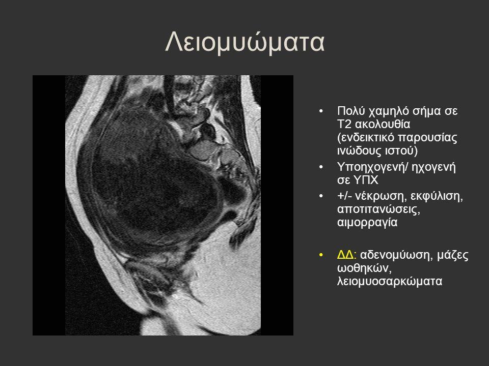 Λειομυώματα Πολύ χαμηλό σήμα σε Τ2 ακολουθία (ενδεικτικό παρουσίας ινώδους ιστού) Υποηχογενή/ ηχογενή σε ΥΠΧ +/- νέκρωση, εκφύλιση, αποτιτανώσεις, αιμ