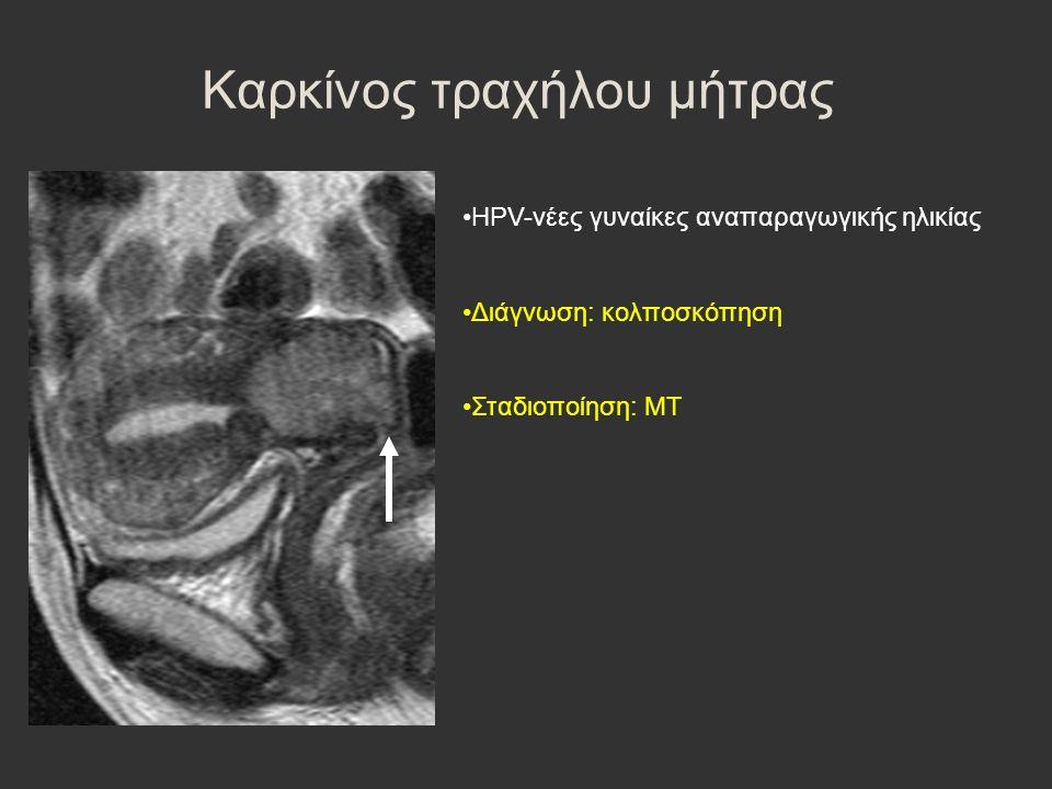 Καρκίνος τραχήλου μήτρας HPV-νέες γυναίκες αναπαραγωγικής ηλικίας Διάγνωση: κολποσκόπηση Σταδιοποίηση: ΜΤ