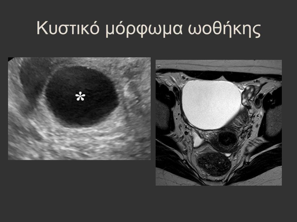Κυστικό μόρφωμα ωοθήκης