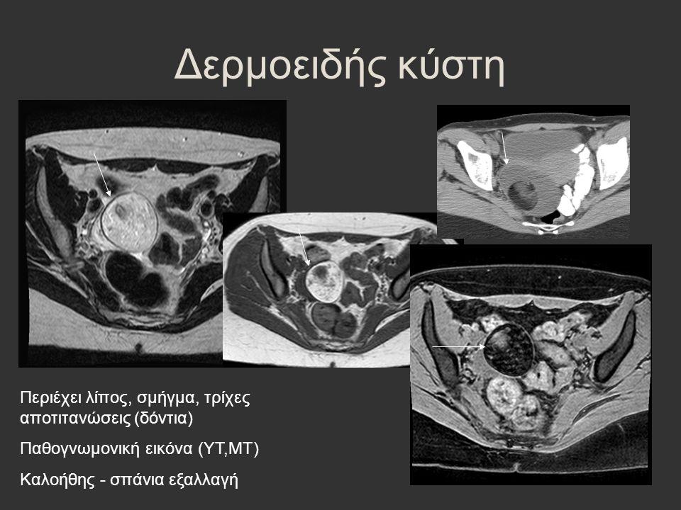 Δερμοειδής κύστη Περιέχει λίπος, σμήγμα, τρίχες αποτιτανώσεις (δόντια) Παθογνωμονική εικόνα (ΥΤ,ΜΤ) Καλοήθης - σπάνια εξαλλαγή