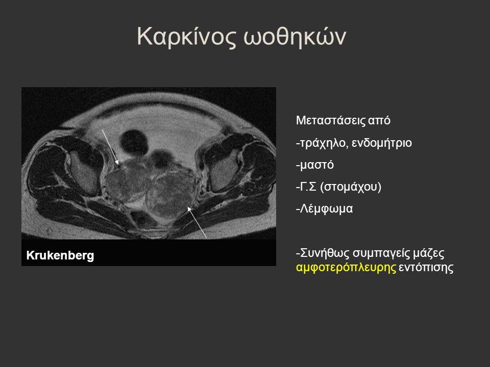 Καρκίνος ωοθηκών Μεταστάσεις από -τράχηλο, ενδομήτριο -μαστό -Γ.Σ (στομάχου) -Λέμφωμα -Συνήθως συμπαγείς μάζες αμφοτερόπλευρης εντόπισης Κrukenberg