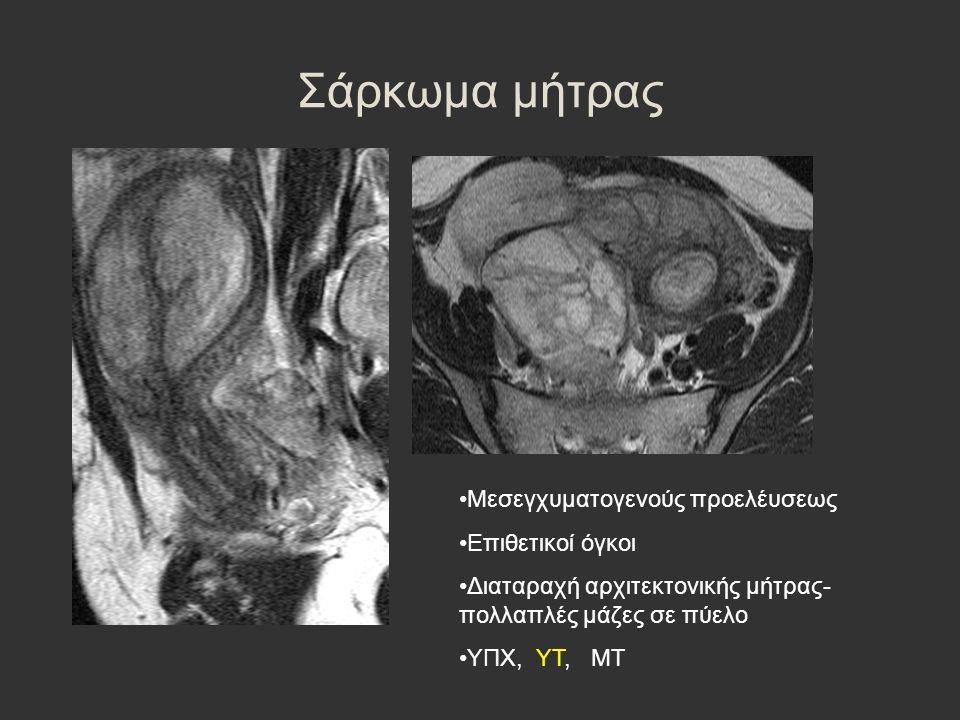 Σάρκωμα μήτρας Μεσεγχυματογενούς προελέυσεως Επιθετικοί όγκοι Διαταραχή αρχιτεκτονικής μήτρας- πολλαπλές μάζες σε πύελο ΥΠΧ, ΥΤ, ΜΤ