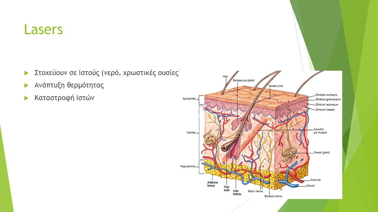 Lasers  Στοχεύουν σε Ιστούς (νερό, χρωστικές ουσίες)  Ανάπτυξη θερμότητας  Καταστροφή Ιστών
