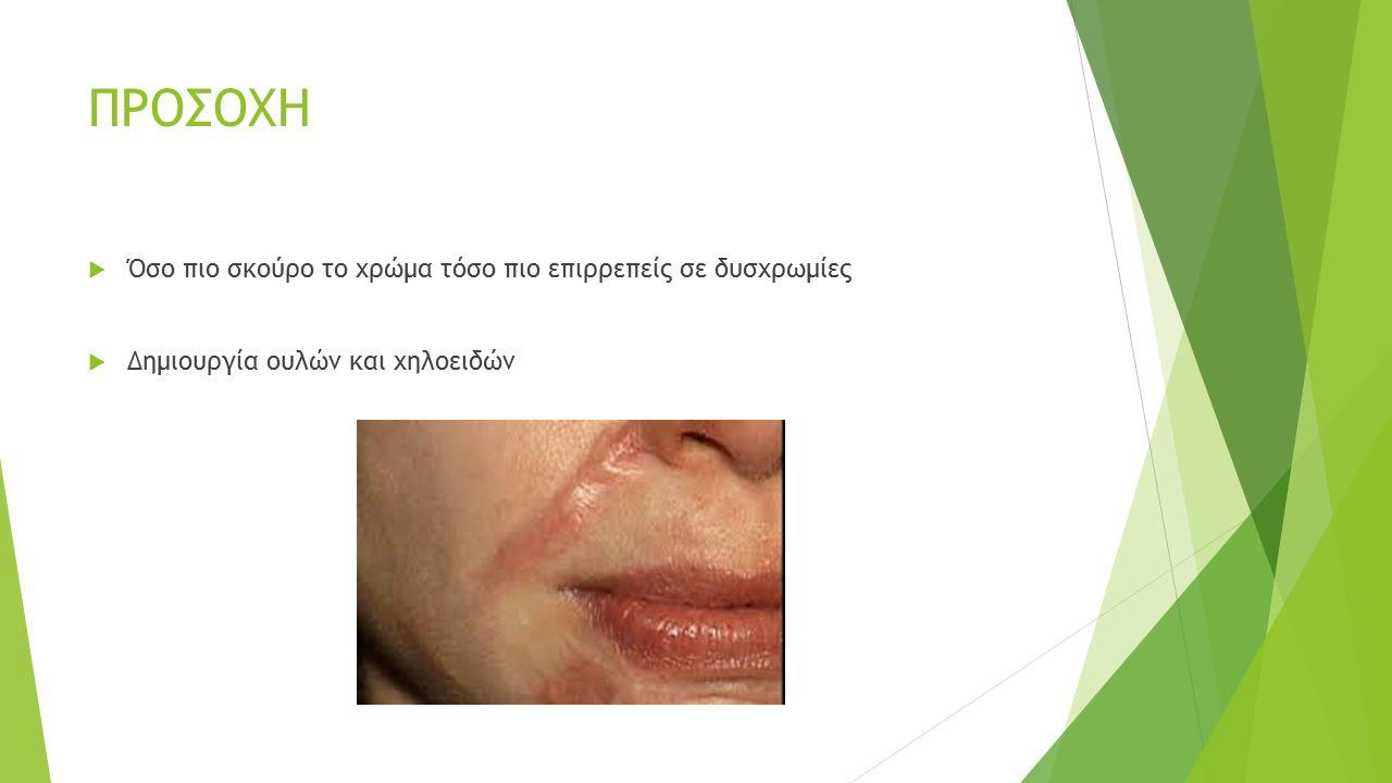 ΔΕΡΜΑΤΙΚΗ ΑΠΟΞΕΣΗ  Καταστρέφεται η επιφανειακή στοιβάδα δέρματος  Μείωση ρυτίδων  Αφαιρούνται ανωμαλίες (ακμή)  Υπερυψωμένες ουλές