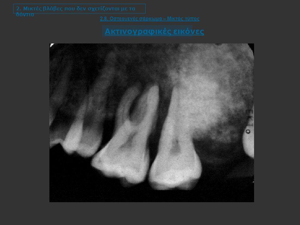 2. Μικτές βλάβες που δεν σχετίζονται με τα δόντια 2.8.