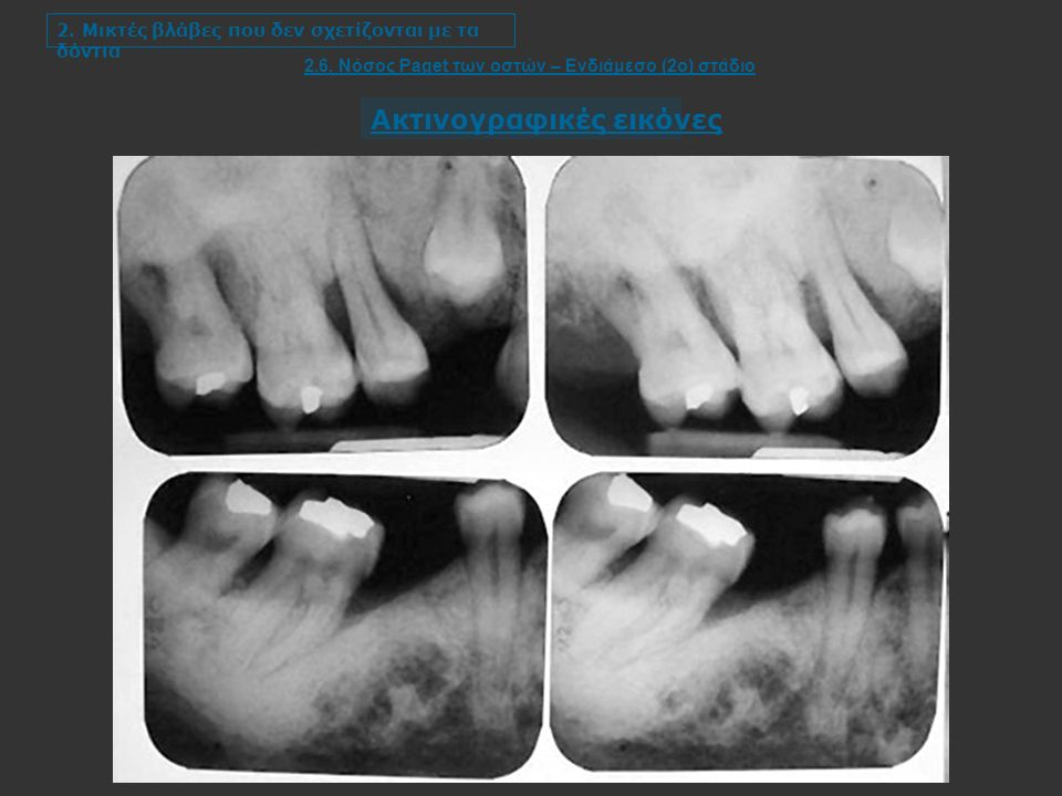 2. Μικτές βλάβες που δεν σχετίζονται με τα δόντια 2.6.