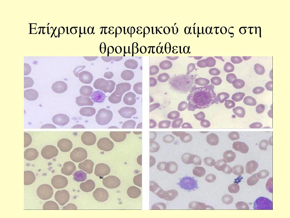 Επίχρισμα περιφερικού αίματος στη θρομβοπάθεια