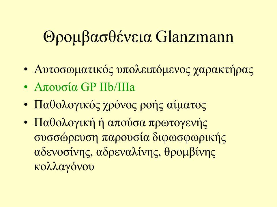 Θρομβασθένεια Glanzmann Αυτοσωματικός υπολειπόμενος χαρακτήρας Απουσία GP IΙb/IIIa Παθολογικός χρόνος ροής αίματος Παθολογική ή απούσα πρωτογενής συσσ