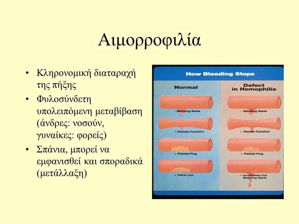 Αιμορροφιλία Κληρονομική διαταραχή της πήξης Φυλοσύνδετη υπολειπόμενη μεταβίβαση (άνδρες: νοσούν, γυναίκες: φορείς) Σπάνια, μπορεί να εμφανισθεί και σποραδικά (μετάλλαξη)