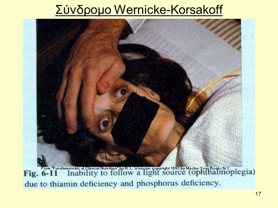 17 Σύνδροµο Wernicke-Korsakoff
