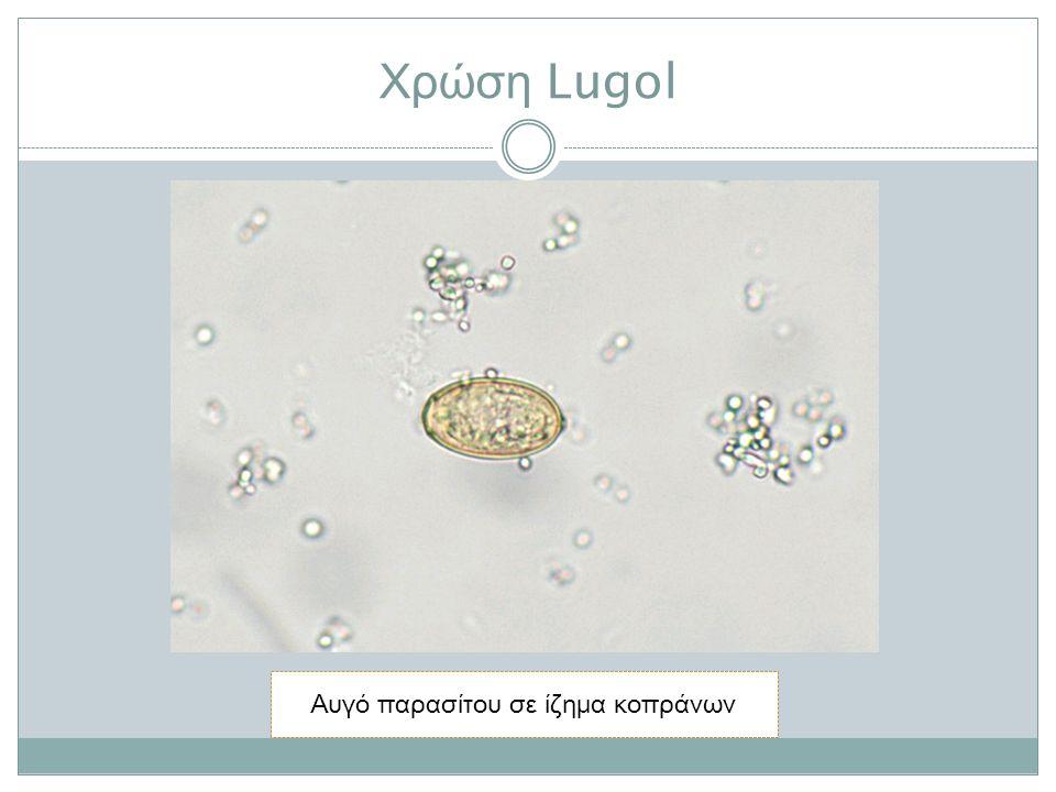 Χρώση Lugol Αυγό παρασίτου σε ίζημα κοπράνων