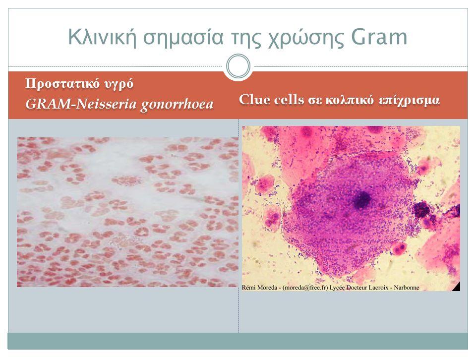Προστατικό υγρό GRAM-Neisseria gonorrhoea Προστατικό υγρό GRAM-Neisseria gonorrhoea Clue cells σε κολπικό επίχρισμα Κλινική σημασία της χρώσης Gram