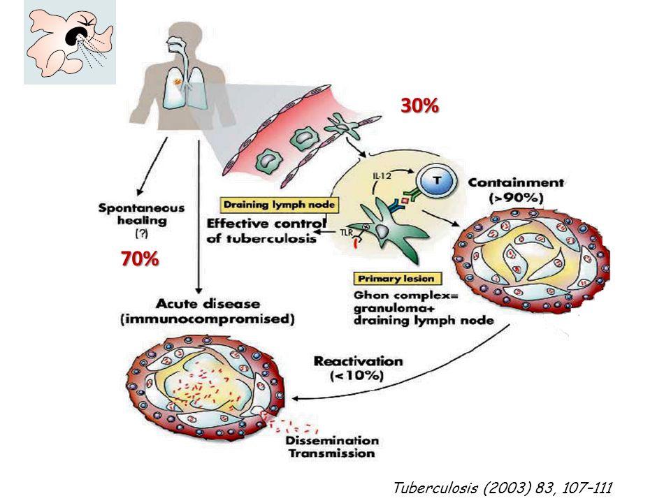 30% Tuberculosis (2003) 83, 107–111 70%