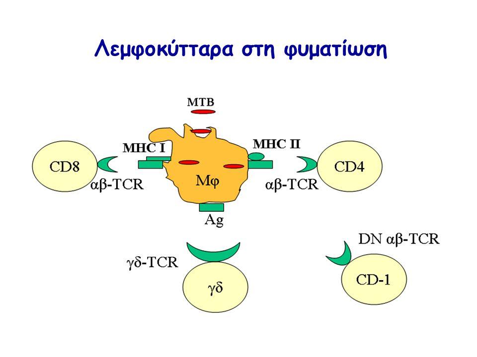 Λεμφοκύτταρα στη φυματίωση