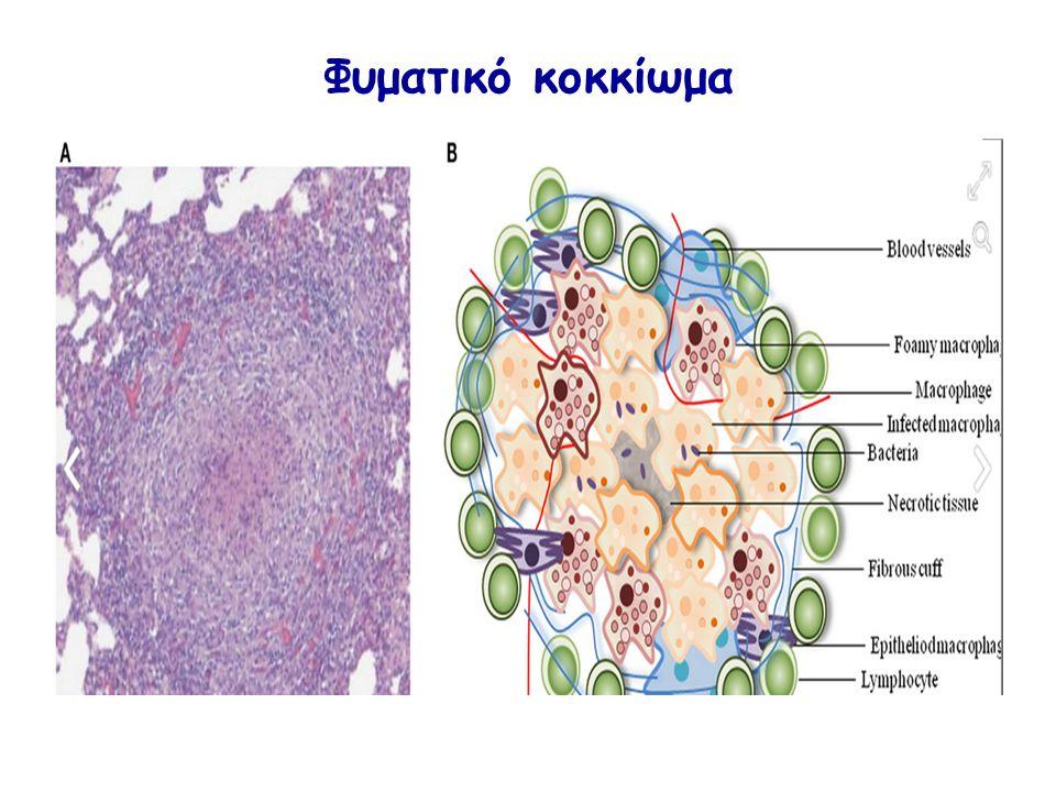 Φυματικό κοκκίωμα